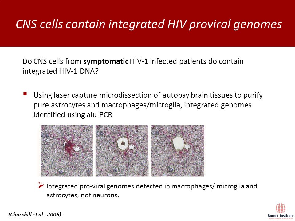 Do CNS cells from symptomatic HIV-1 infected patients do contain integrated HIV-1 DNA.