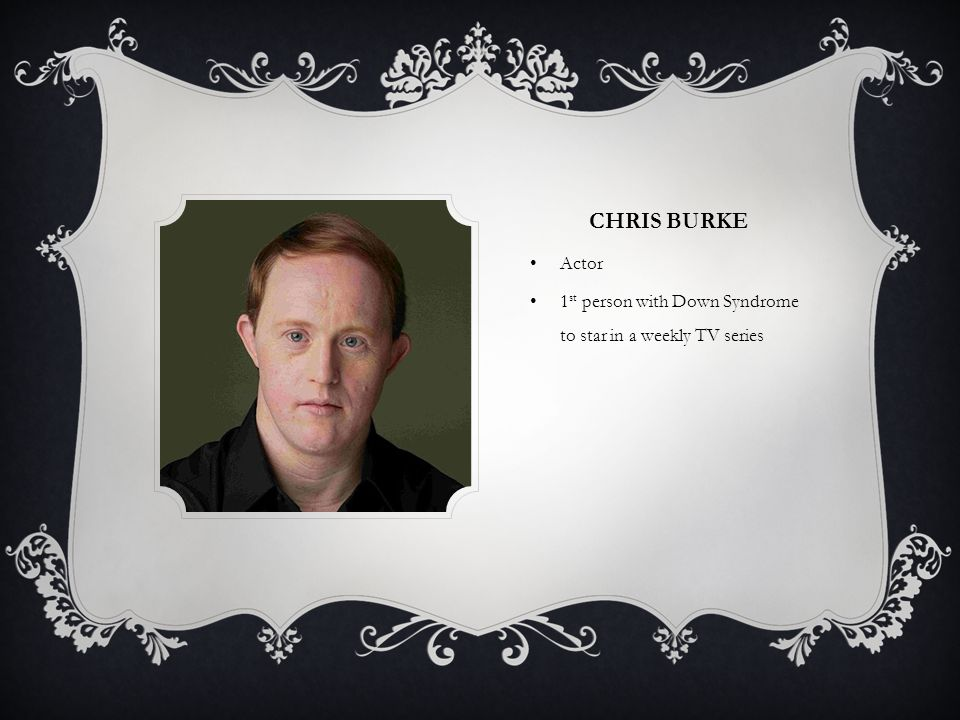 CHRIS BURKE Actor 1 st person with Down Syndrome to star in a weekly TV series