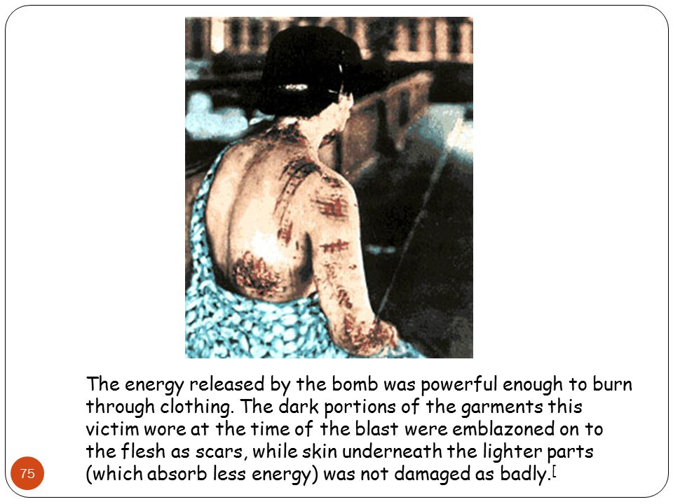 The energy released by the bomb was powerful enough to burn through clothing.