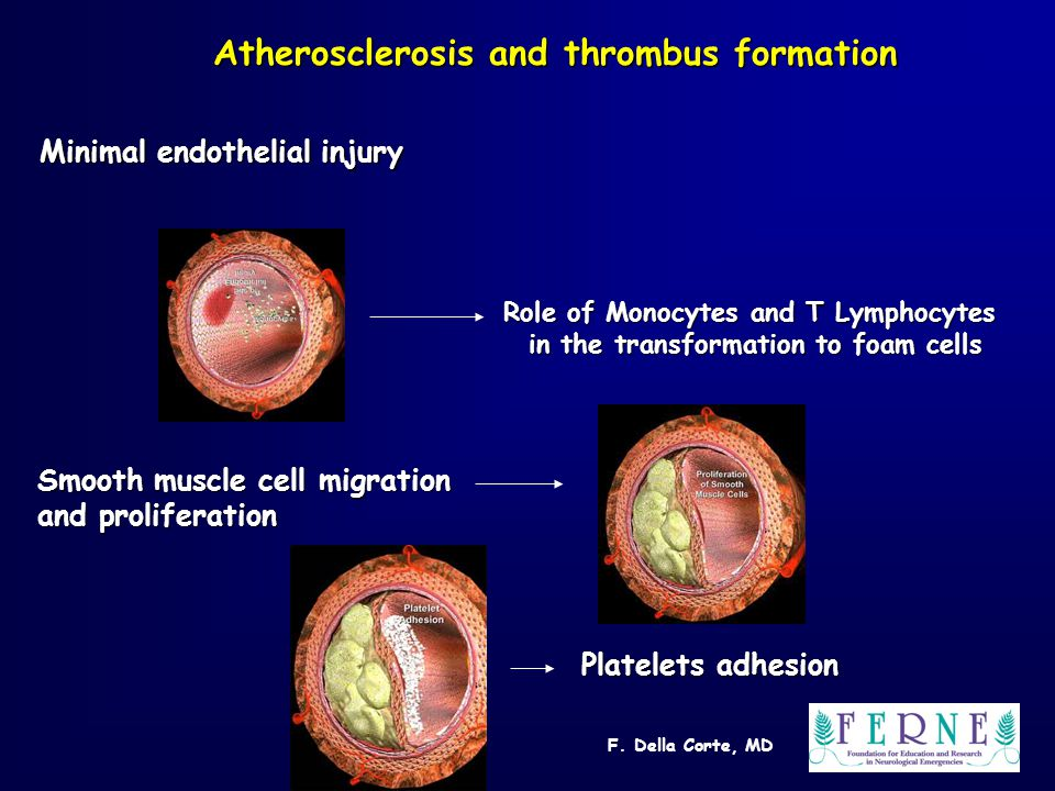 F. Della Corte, MD Atherosclerosis and thrombus formation Minimal endothelial injury Role of Monocytes and T Lymphocytes in the transformation to foam