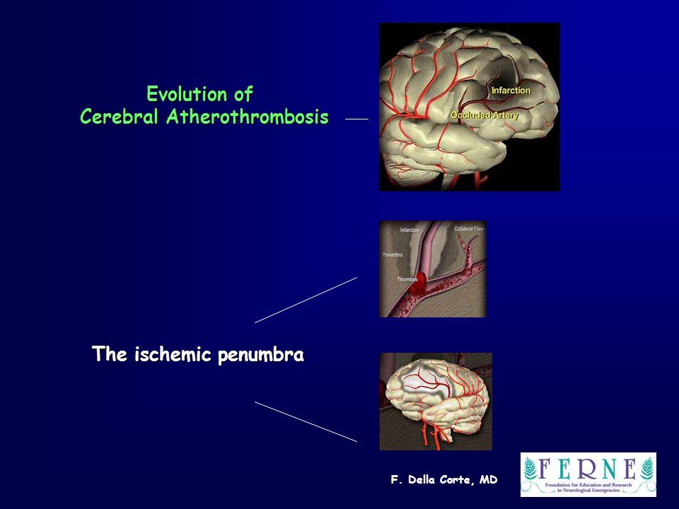 F. Della Corte, MD Evolution of Cerebral Atherothrombosis The ischemic penumbra