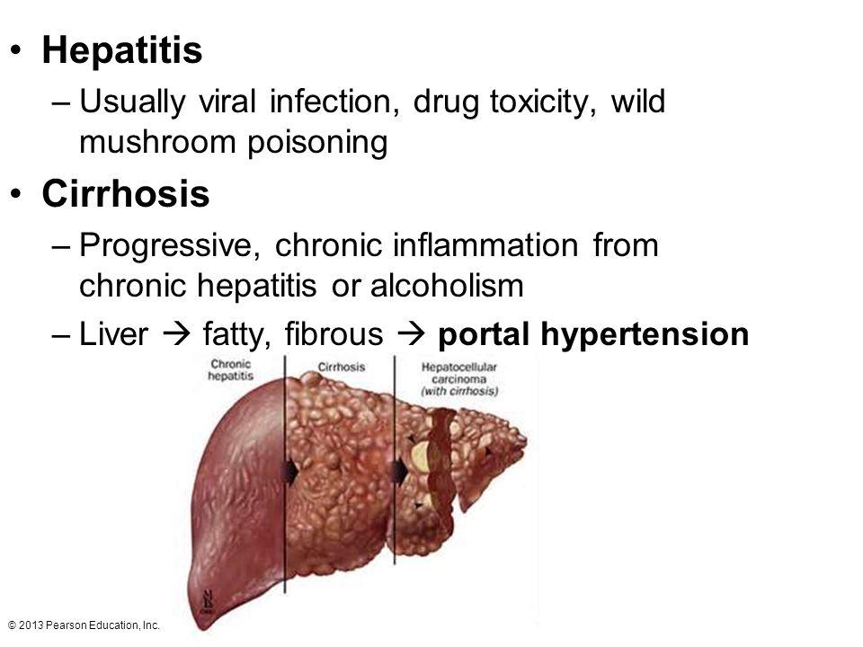 © 2013 Pearson Education, Inc. Hepatitis –Usually viral infection, drug toxicity, wild mushroom poisoning Cirrhosis –Progressive, chronic inflammation
