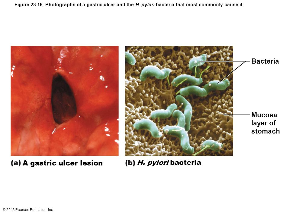 © 2013 Pearson Education, Inc. Figure 23.16 Photographs of a gastric ulcer and the H. pylori bacteria that most commonly cause it. A gastric ulcer les