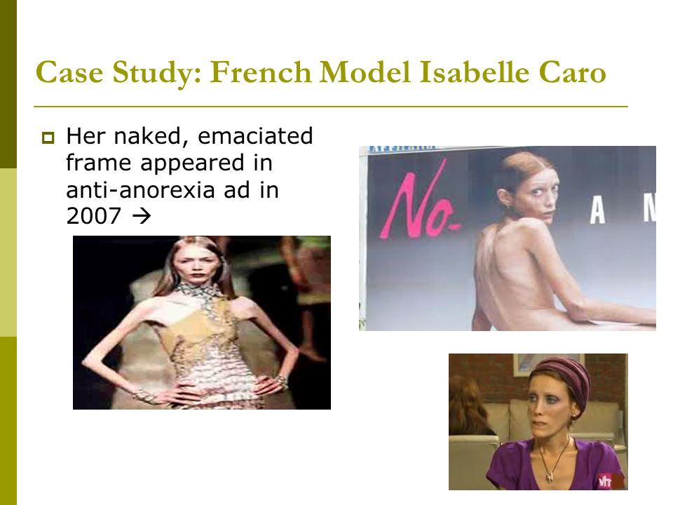 Case Study: French Model Isabelle Caro  Her naked, emaciated frame appeared in anti-anorexia ad in 2007 