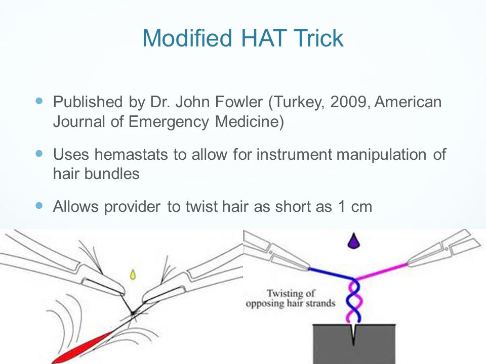 Modified HAT Trick Published by Dr. John Fowler (Turkey, 2009, American Journal of Emergency Medicine) Uses hemastats to allow for instrument manipula