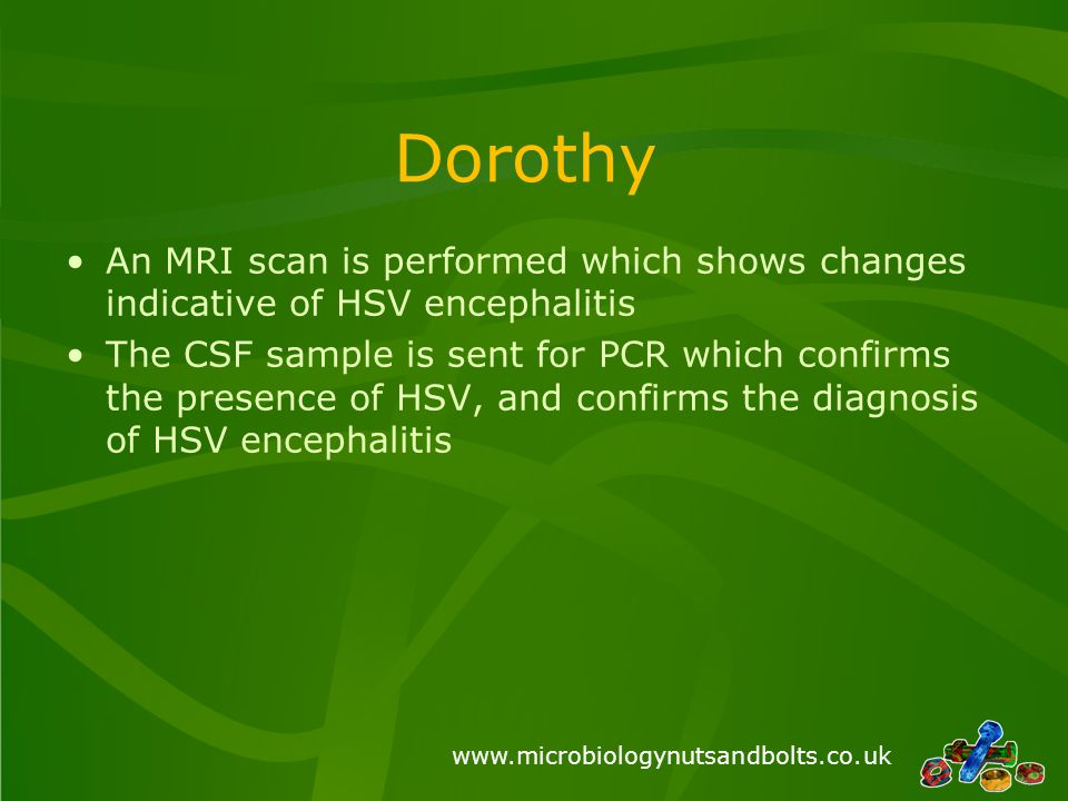 www.microbiologynutsandbolts.co.uk Dorothy An MRI scan is performed which shows changes indicative of HSV encephalitis The CSF sample is sent for PCR