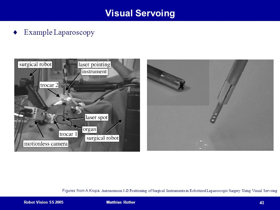 Robot Vision SS 2005 Matthias Rüther 41 Visual Servoing  Example Laparoscopy Figures from A.Krupa: Autonomous 3-D Positioning of Surgical Instruments in Robotized Laparoscopic Surgery Using Visual Servoing