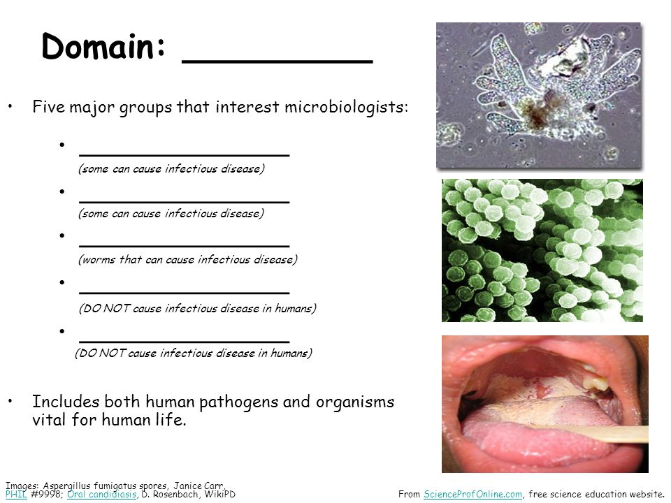 Domain: _________ Five major groups that interest microbiologists: _______________ (some can cause infectious disease) _______________ (some can cause infectious disease) _______________ (worms that can cause infectious disease) _______________ (DO NOT cause infectious disease in humans) _______________ (DO NOT cause infectious disease in humans) Includes both human pathogens and organisms vital for human life.