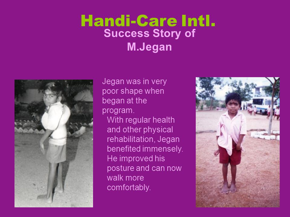 Handi-Care Intl. Success Story of M.Jegan Jegan was in very poor shape when began at the program.