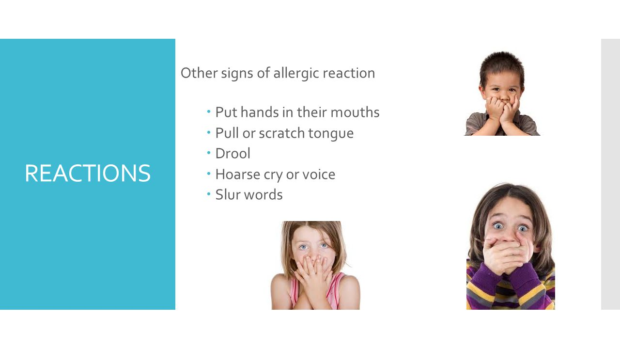 REACTIONS Other signs of allergic reaction  Put hands in their mouths  Pull or scratch tongue  Drool  Hoarse cry or voice  Slur words