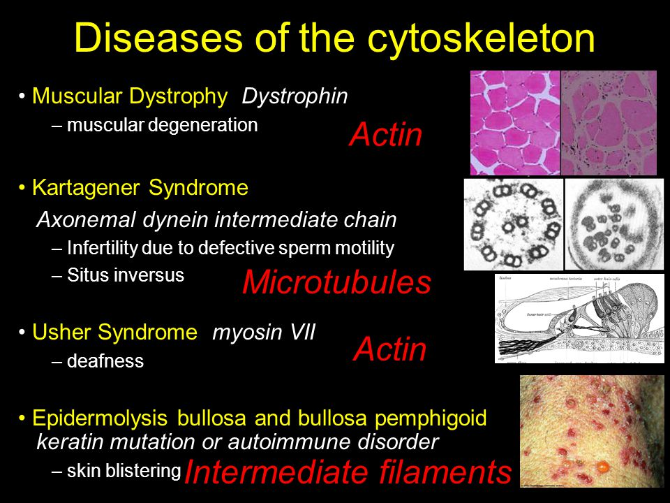 Diseases of the cytoskeleton Muscular Dystrophy Dystrophin – muscular degeneration Kartagener Syndrome Axonemal dynein intermediate chain – Infertility due to defective sperm motility – Situs inversus Usher Syndrome myosin VII – deafness Epidermolysis bullosa and bullosa pemphigoid keratin mutation or autoimmune disorder – skin blistering Actin Microtubules Intermediate filaments