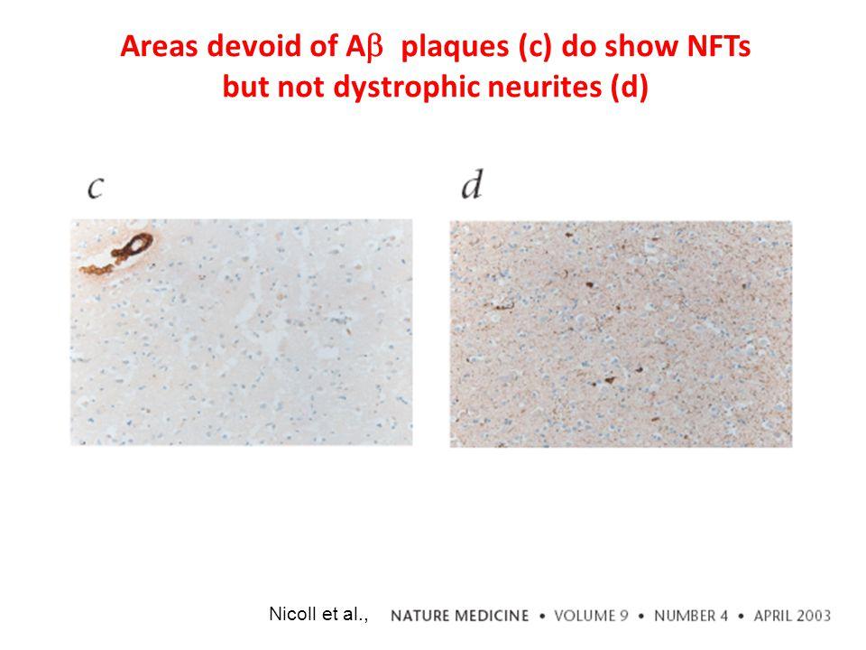 Nicoll et al., Areas devoid of A  plaques (c) do show NFTs but not dystrophic neurites (d)