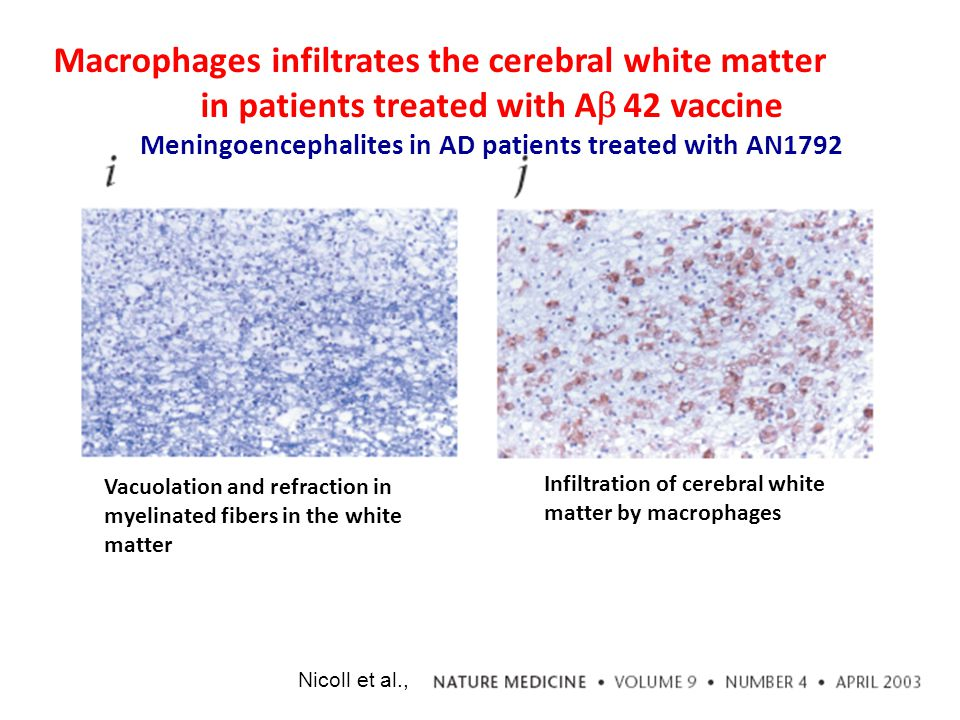 Macrophages infiltrates the cerebral white matter in patients treated with A   42 vaccine Meningoencephalites in AD patients treated with AN1792 Vacuolation and refraction in myelinated fibers in the white matter Infiltration of cerebral white matter by macrophages Nicoll et al.,