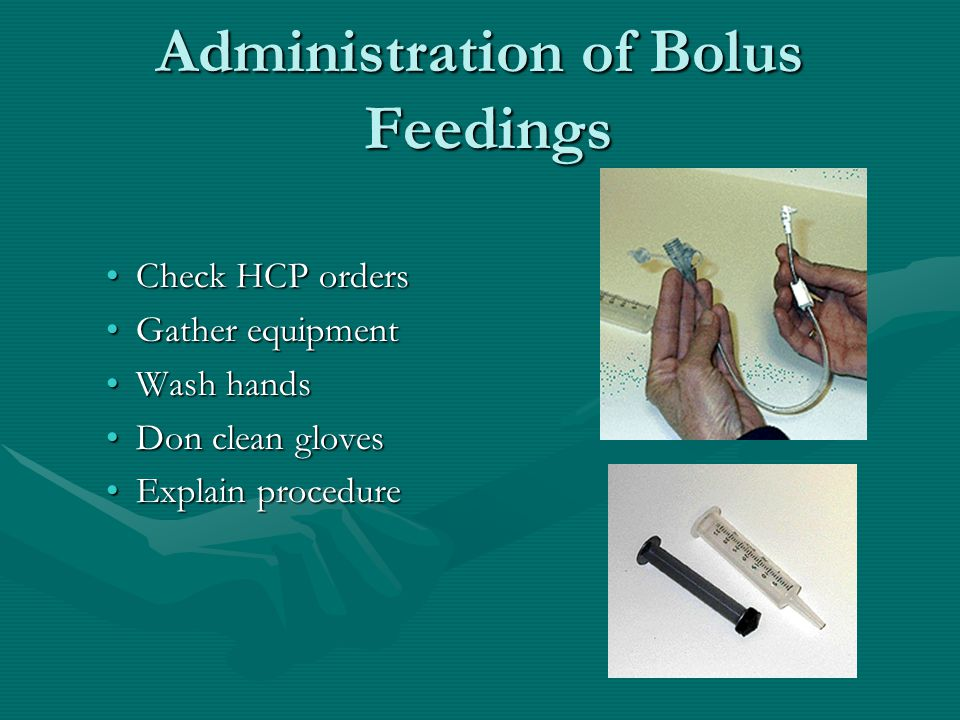 Administration of Bolus Feedings Check HCP ordersCheck HCP orders Gather equipmentGather equipment Wash handsWash hands Don clean glovesDon clean gloves Explain procedureExplain procedure