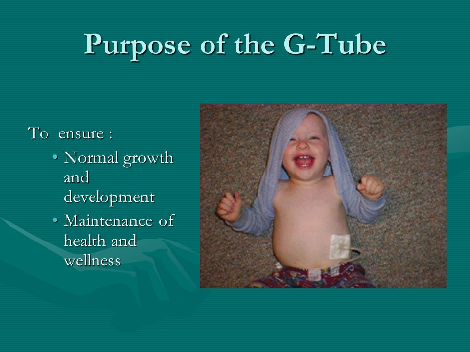 Purpose of the G-Tube To ensure : Normal growth and developmentNormal growth and development Maintenance of health and wellnessMaintenance of health a