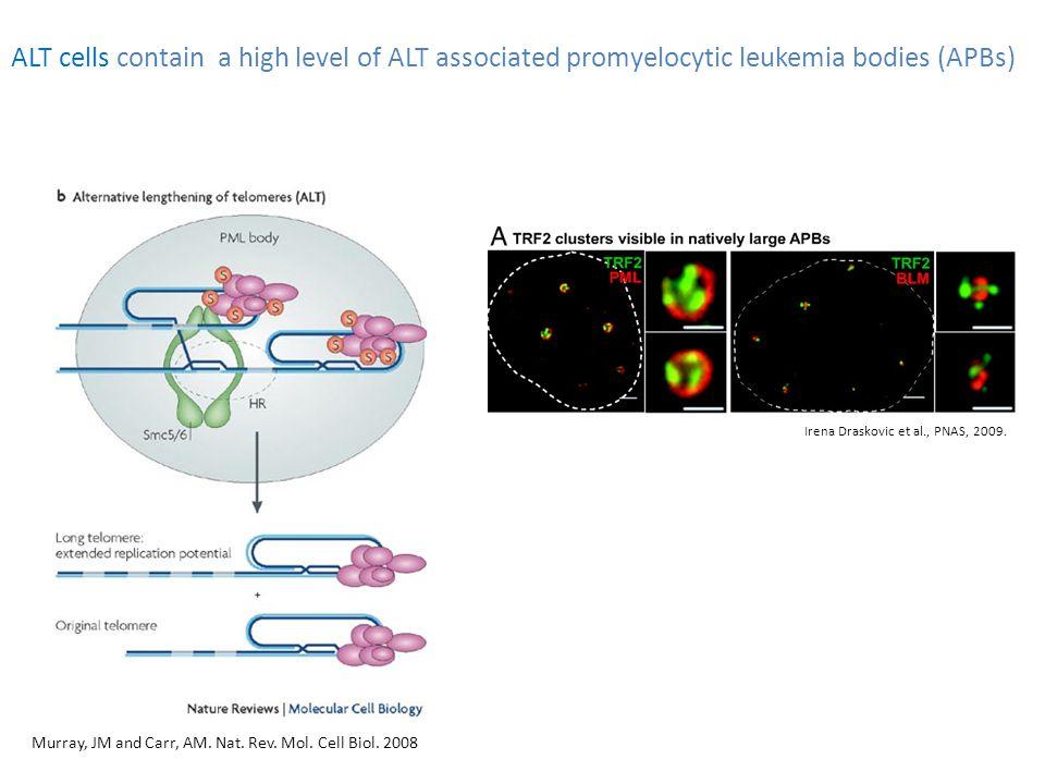 ALT cells contain a high level of ALT associated promyelocytic leukemia bodies (APBs) Irena Draskovic et al., PNAS, 2009.