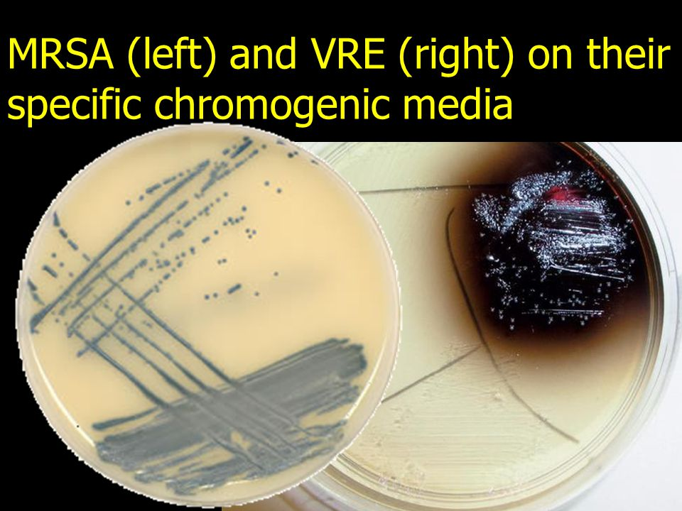 MRSA (left) and VRE (right) on their specific chromogenic media