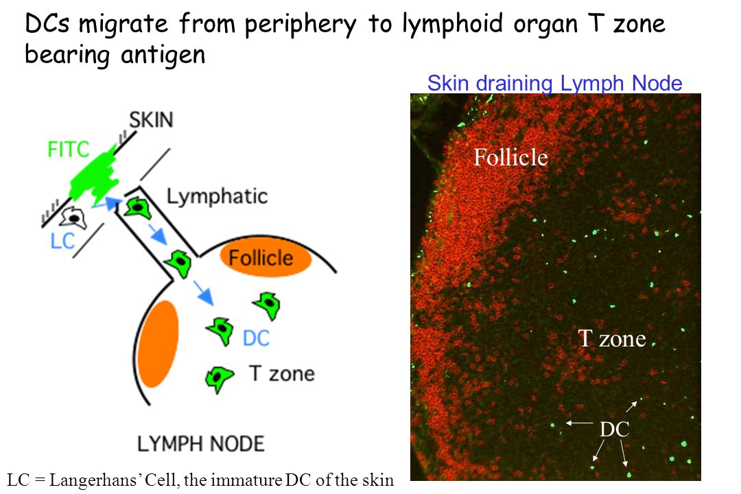 T zone Follicle DC Skin draining Lymph Node DCs migrate from periphery to lymphoid organ T zone bearing antigen LC = Langerhans' Cell, the immature DC of the skin