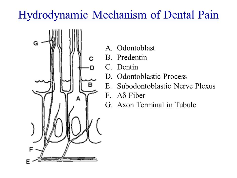 Hydrodynamic Mechanism of Dental Pain A.Odontoblast B.Predentin C.Dentin D.Odontoblastic Process E.Subodontoblastic Nerve Plexus F.A  Fiber G.Axon Terminal in Tubule