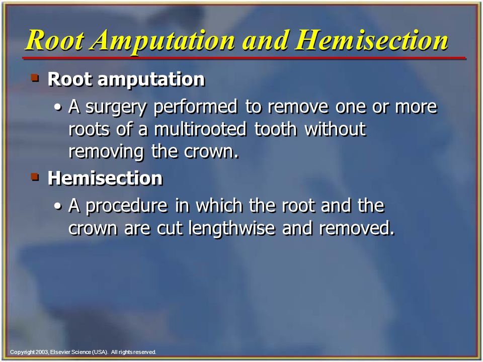 Copyright 2003, Elsevier Science (USA). All rights reserved.  Root amputation A surgery performed to remove one or more roots of a multirooted tooth