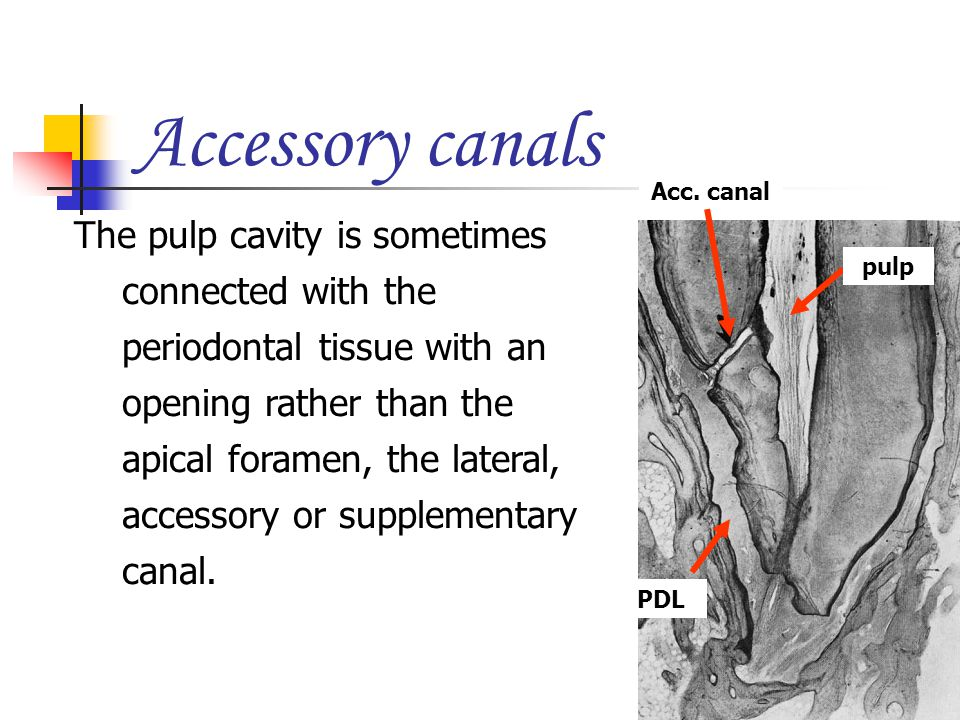 The pulp cavity is sometimes connected with the periodontal tissue with an opening rather than the apical foramen, the lateral, accessory or supplemen
