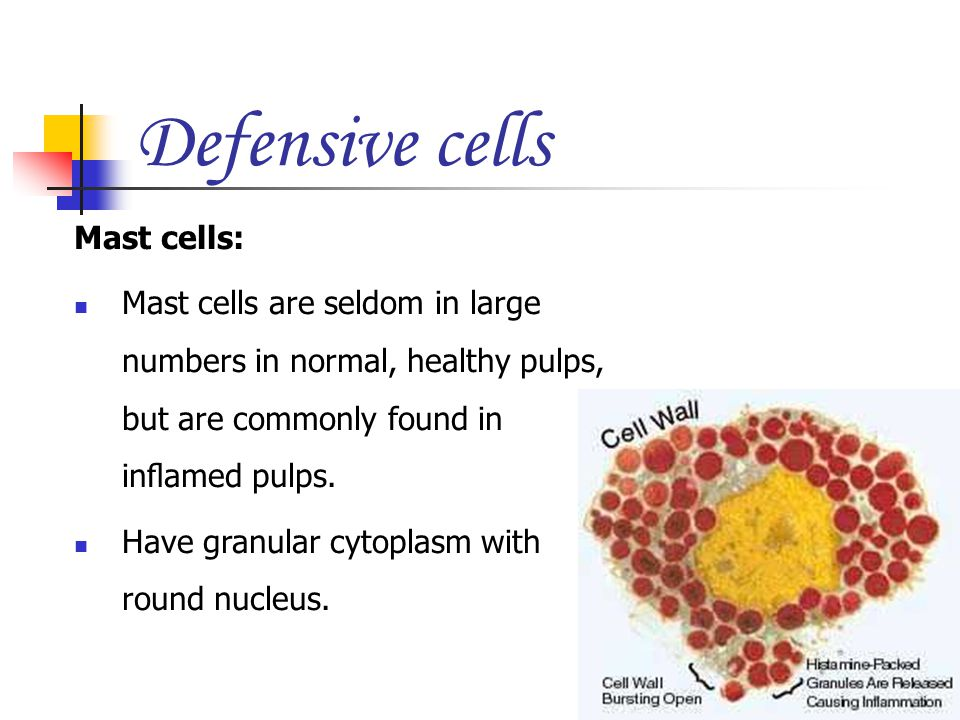 Defensive cells Mast cells: Mast cells are seldom in large numbers in normal, healthy pulps, but are commonly found in inflamed pulps. Have granular cy