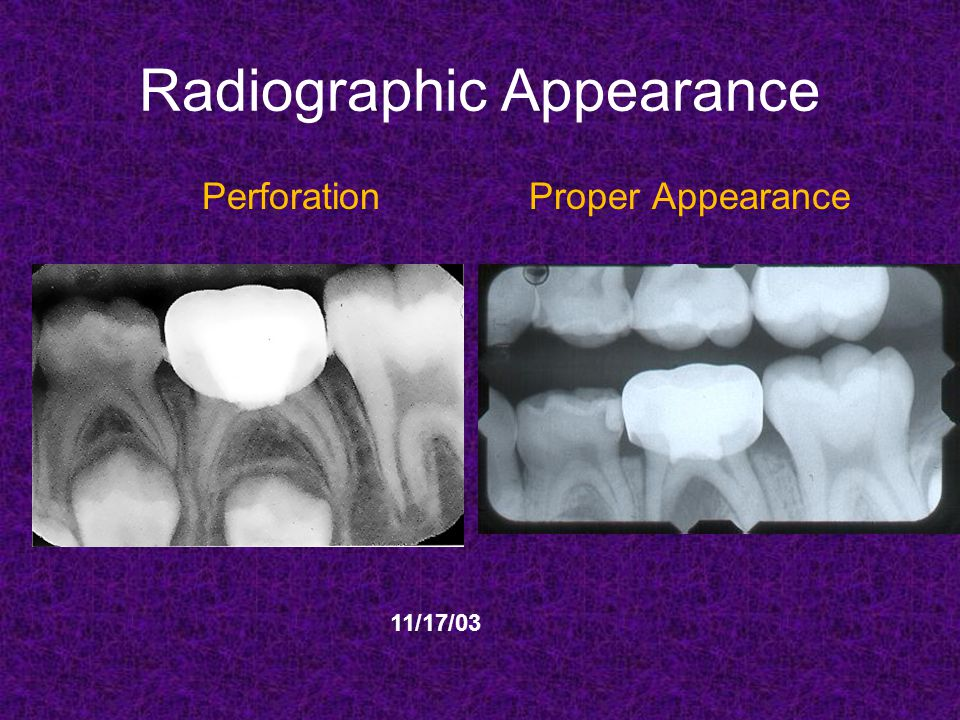 Radiographic Appearance Perforation Proper Appearance 11/17/03
