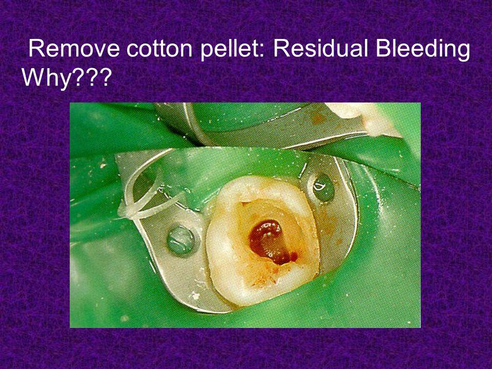 Remove cotton pellet: Residual Bleeding Why???