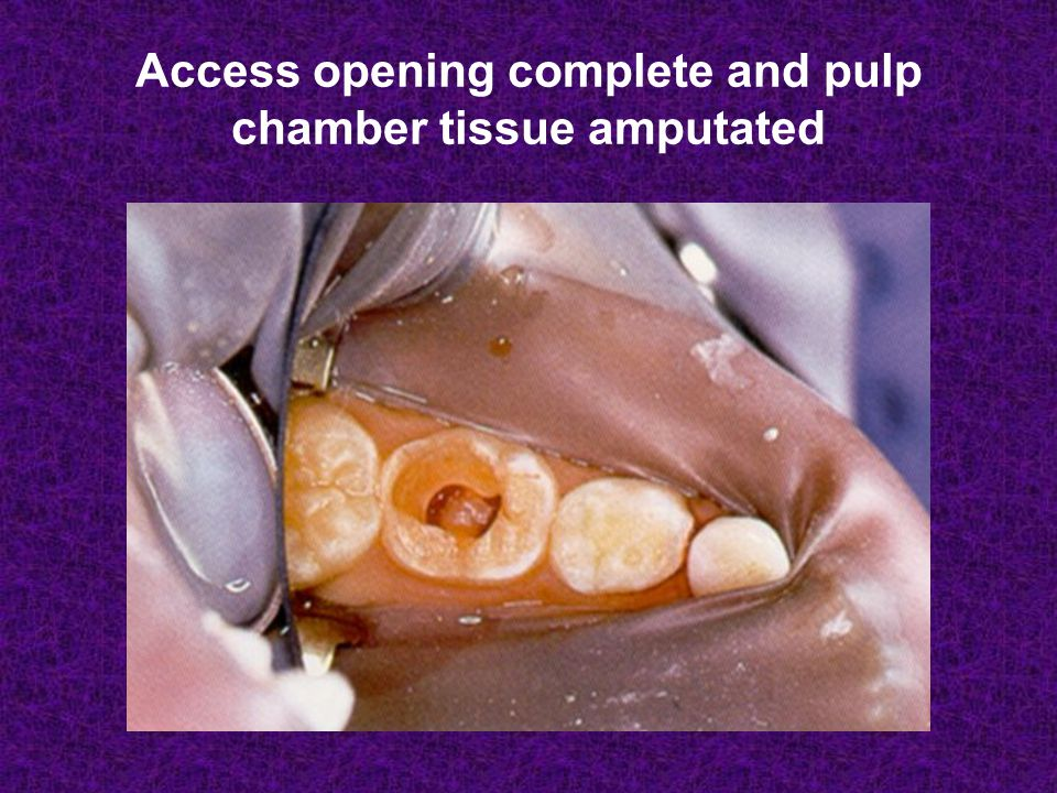 Access opening complete and pulp chamber tissue amputated