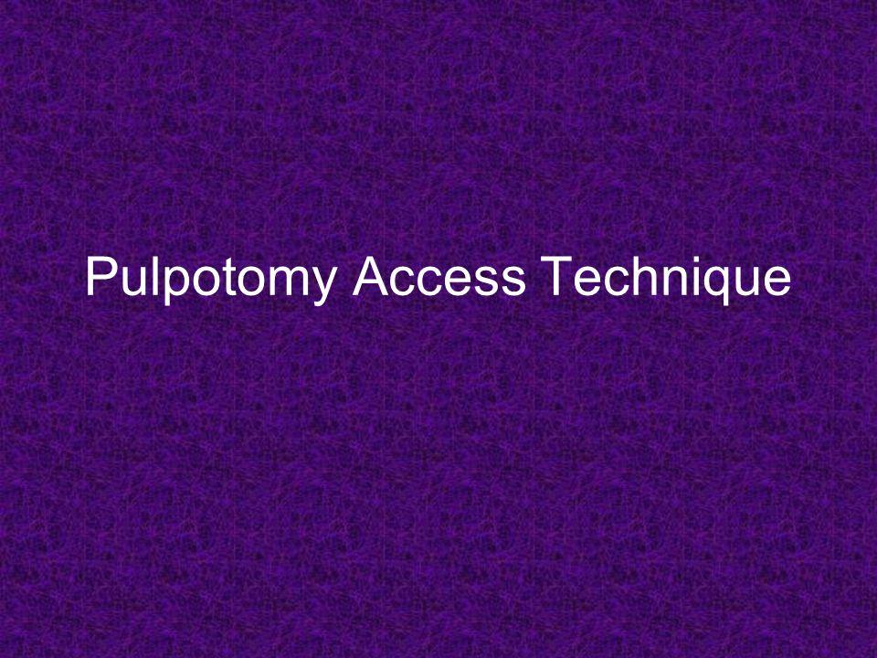 Pulpotomy Access Technique