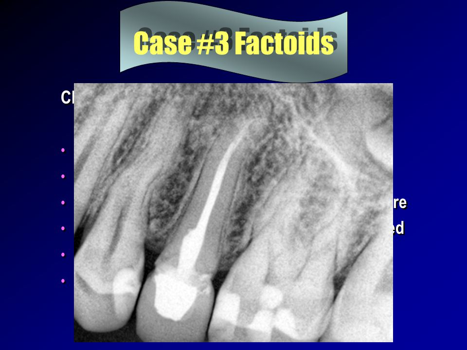 Case #3 Factoids Chief complaint masticatory sensitivity RCT done prior – time indeterminate apical periodontitis in evidence 2 visits – interim calci