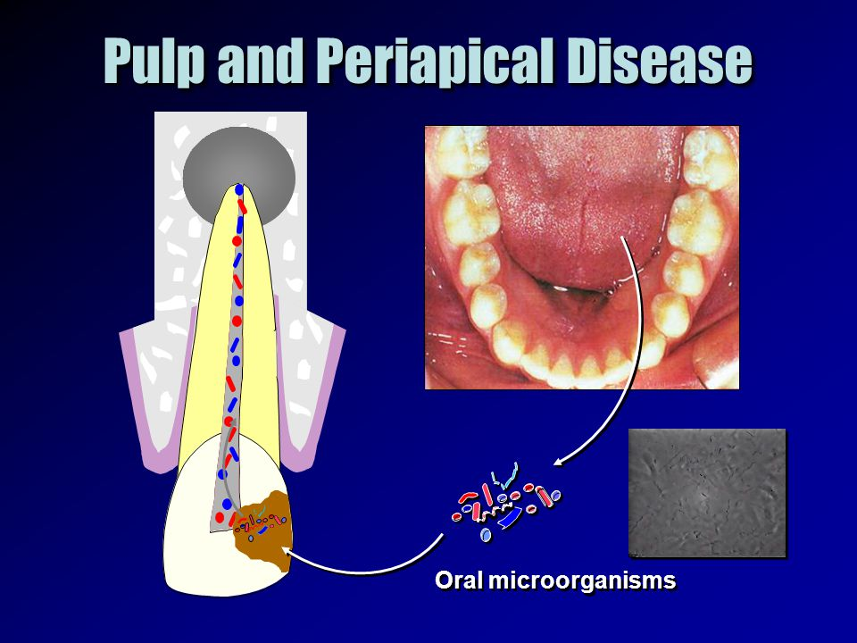 Oral microorganisms Pulp and Periapical Disease