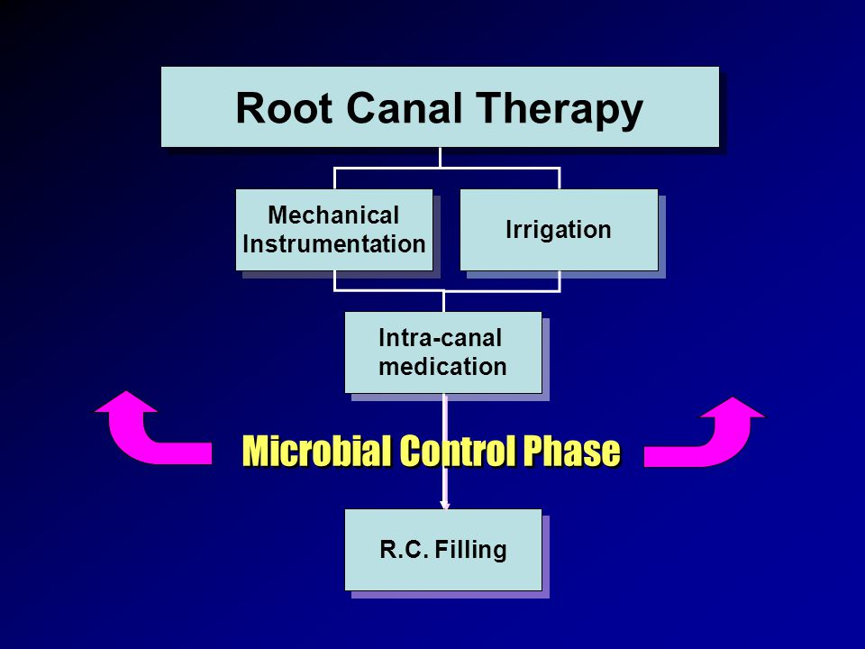 Root Canal Therapy Mechanical Instrumentation Mechanical Instrumentation Irrigation Intra-canal medication Intra-canal medication R.C. Filling Microbi