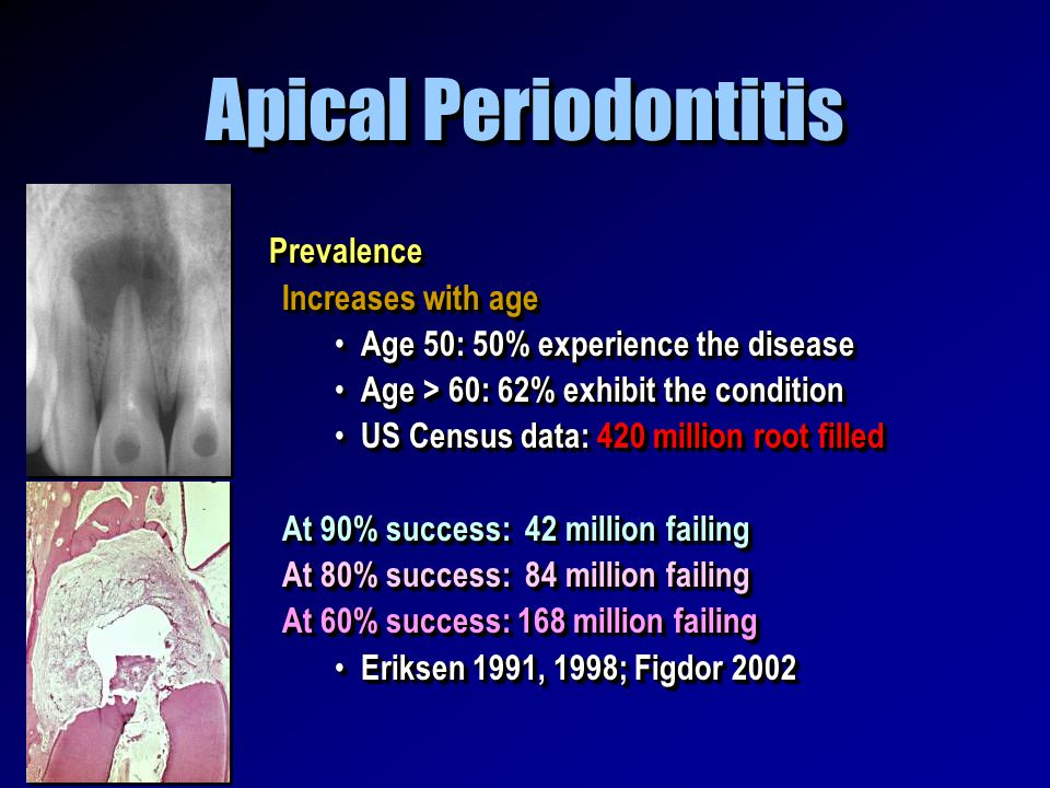Apical Periodontitis Prevalence Increases with age Age 50: 50% experience the disease Age 50: 50% experience the disease Age > 60: 62% exhibit the con