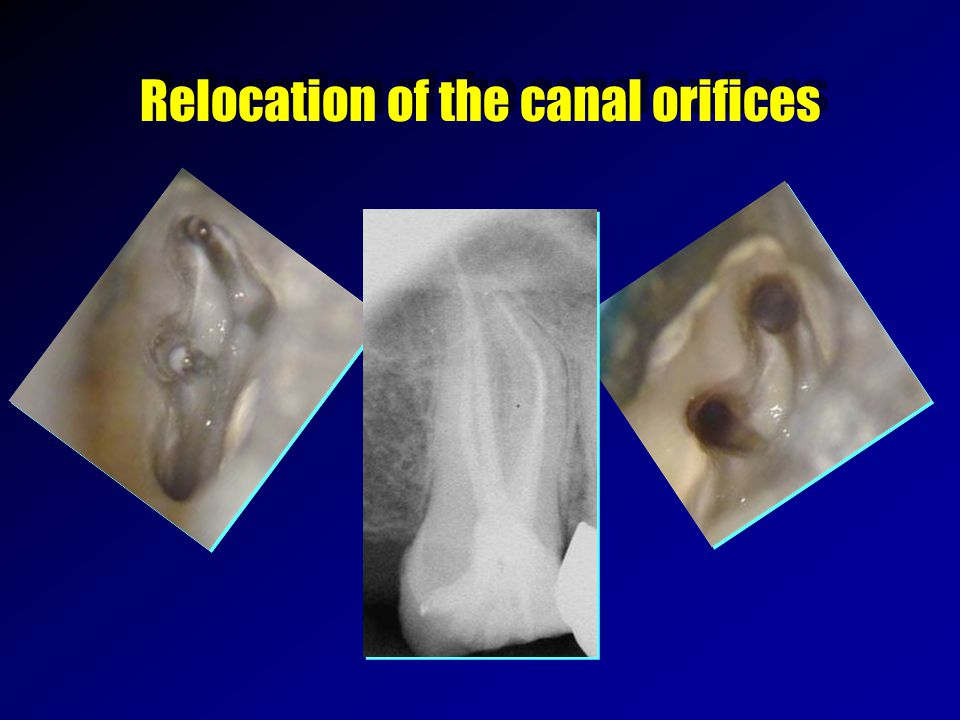 Relocation of the canal orifices