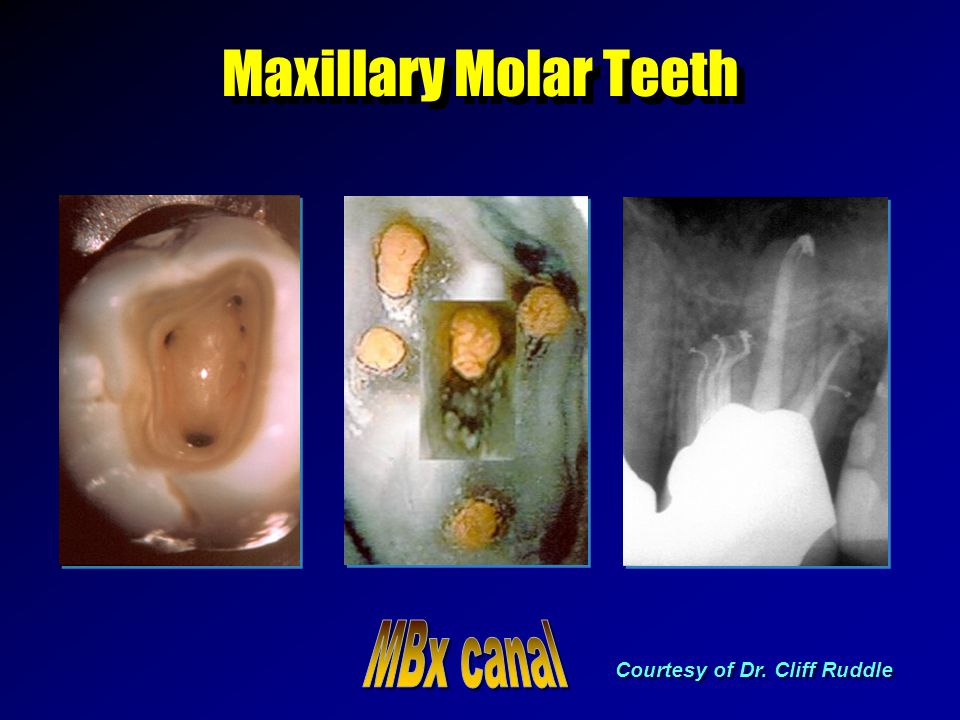 Maxillary Molar Teeth Courtesy of Dr. Cliff Ruddle