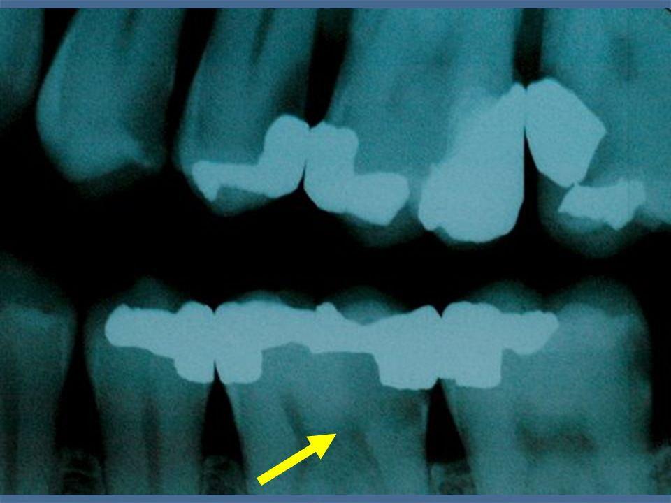 RADIOGRAPHIC CONTRAINDICATIONS RADIOGRAPHIC CONTRAINDICATIONS APICAL RADIOLUCENCY APICAL DETERIORATION - CONDENSING OSTEITIS THREADLIKE PULP PULP STONES CLASS V PROBABLE FUTURE PULP OCCLUSION E.G.