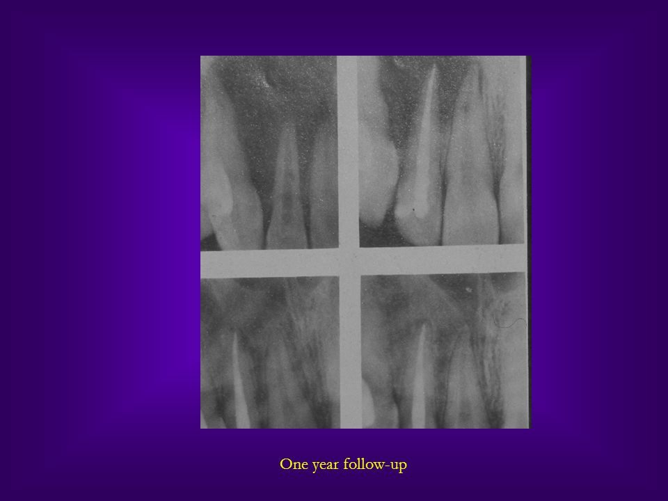 Medical conditions that may influence endodontic treatment planning