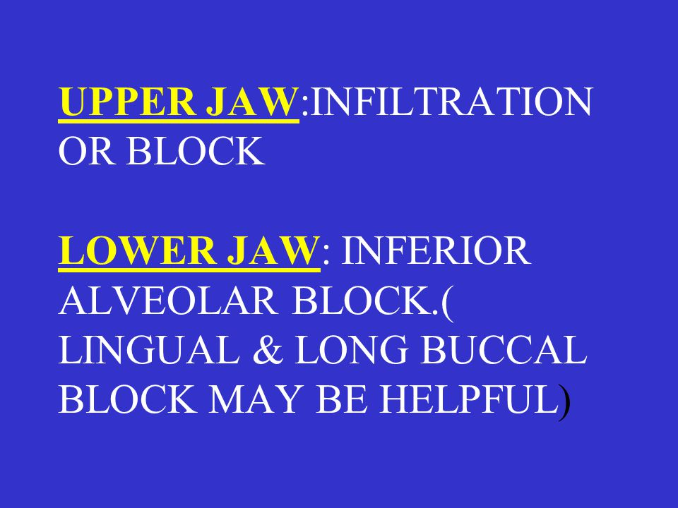 UPPER JAW:INFILTRATION OR BLOCK LOWER JAW: INFERIOR ALVEOLAR BLOCK.( LINGUAL & LONG BUCCAL BLOCK MAY BE HELPFUL)