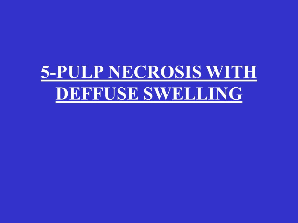5-PULP NECROSIS WITH DEFFUSE SWELLING