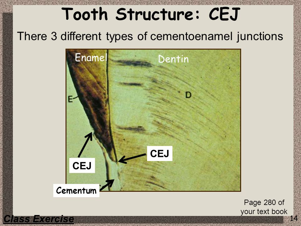 14 CEJ Tooth Structure: CEJ Enamel Dentin Cementum Class Exercise There 3 different types of cementoenamel junctions Page 280 of your text book