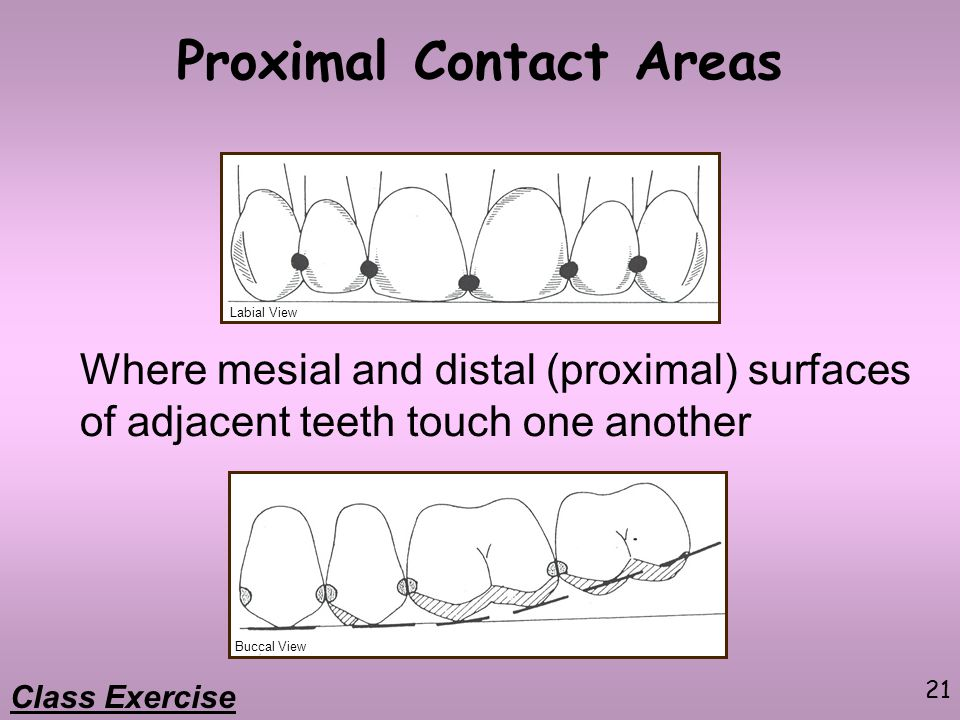 21 Proximal Contact Areas Where mesial and distal (proximal) surfaces of adjacent teeth touch one another Labial View Buccal View Class Exercise