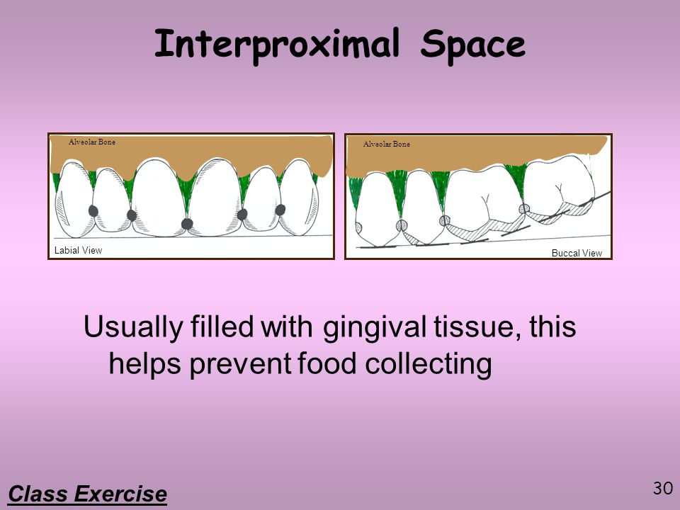 30 Interproximal Space Usually filled with gingival tissue, this helps prevent food collecting Labial View Buccal View Class Exercise Alveolar Bone