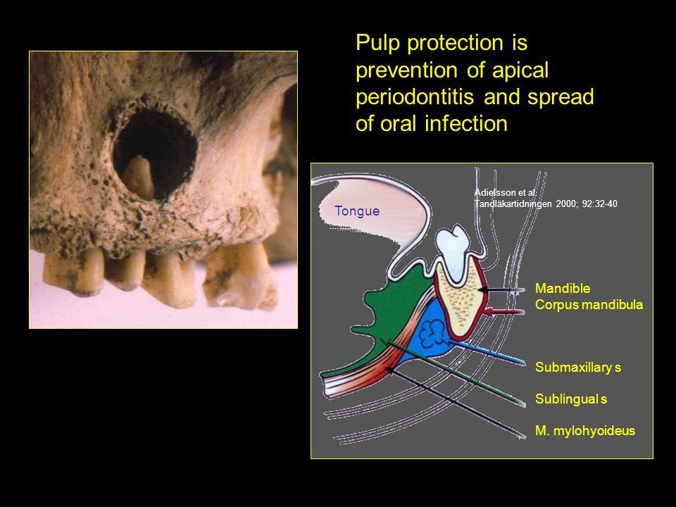Mandible Corpus mandibula Submaxillary s Sublingual s M. mylohyoideus Tongue Adielsson et al. Tandläkartidningen 2000; 92:32-40 Pulp protection is pre