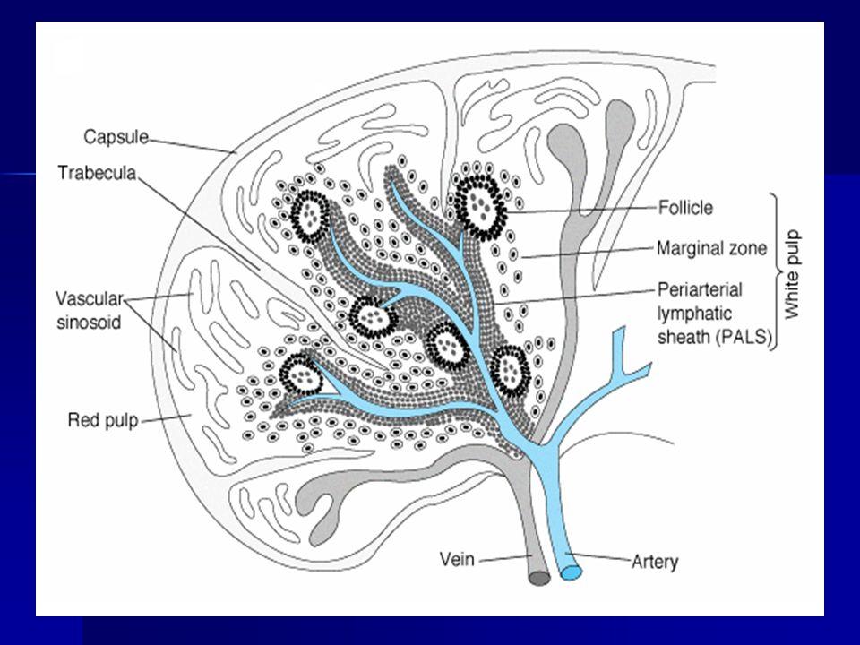 Resources Asplenia.Mudra Kumar, MD, MBBS, MRCP. EMedicine.