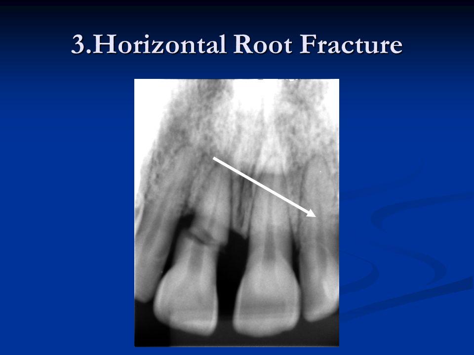 3.Horizontal Root Fracture