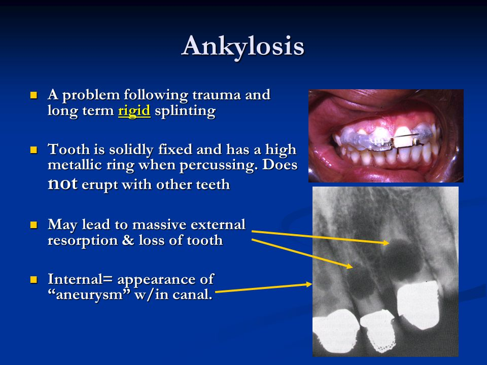 Ankylosis A problem following trauma and long term rigid splinting A problem following trauma and long term rigid splinting Tooth is solidly fixed and