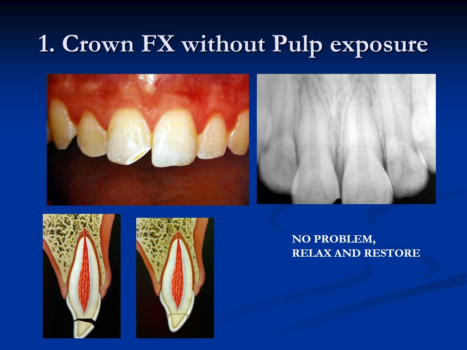 Complicated Crown FX with Pulp Exposure Pulp Cap.