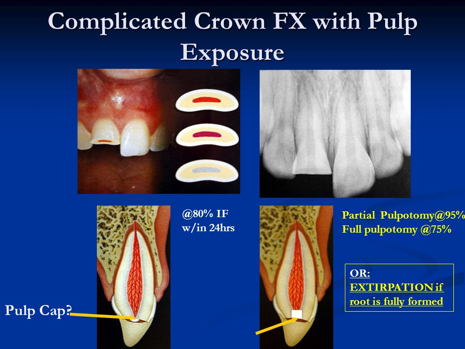 2. Crown-Root Fracture sometimes fractures at an angle Angular Fracture: Is this restorable?