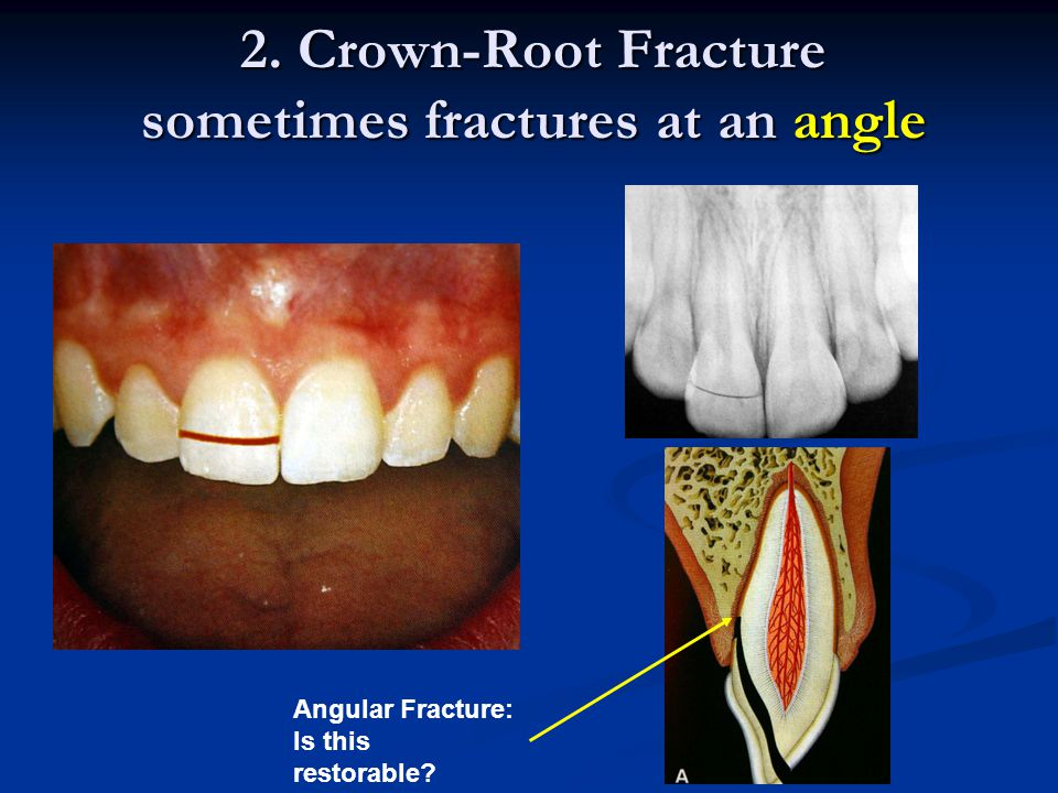 Transillumination Restoration Removal + Staining Other methods of discovering VERTICAL ROOT FRACTURE A surgical exploration is usually the only other way to confirm presence of VRF*
